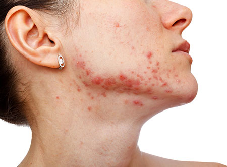 woman-acne-oral-infection.jpg